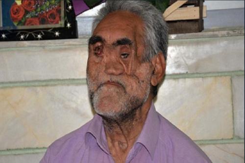 فیلم/ جانبازی که ما را به یاد بابا رجب میاندازد