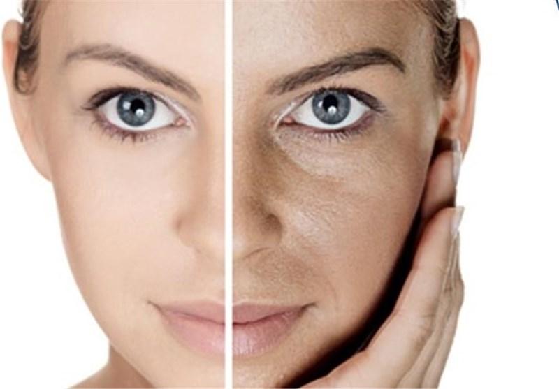 مراقبت نوروزی از پوست