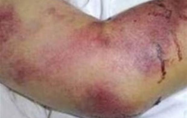۳ نفر در فارس مبتلا به تب کریمه شدند
