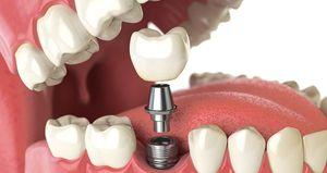 نکتهای که عمر ایمپلنت دندان را افزایش میدهد