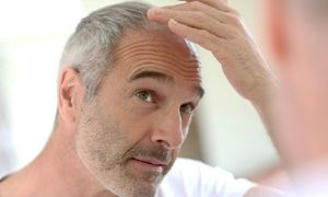 دانستنیهای جالب درباره سفید شدن موهای سر
