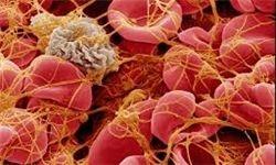 مهار سرطان با کمک نوعی جلبک