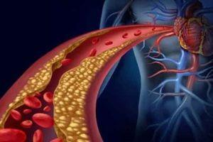 چه عواملی در ایجاد لخته خون نقش دارند؟