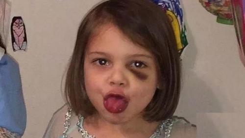 شکنجه و قتل دختر چهار ساله به دست ناپدری