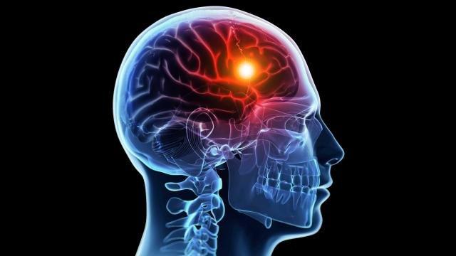 سکته مغزی در هر پنج دقیقه سراغ یک ایرانی  می آید