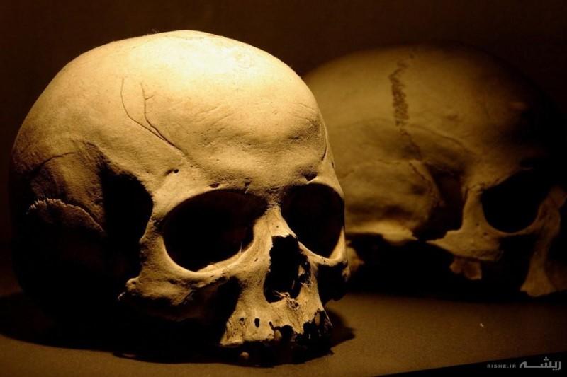 معمای جمجم های سوراخ  در دوران باستان!+عکس ها