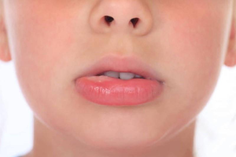 علل برفک دهان چیست؟