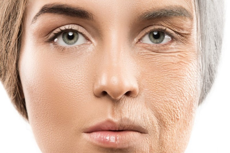 موثرترین راهکارهای درمان پیری زودرس پوست