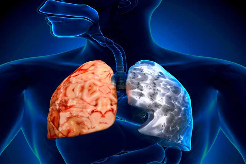 ناتوانی ۱۵ میلیون نفر به دلیل ابتلا به آسم در سال