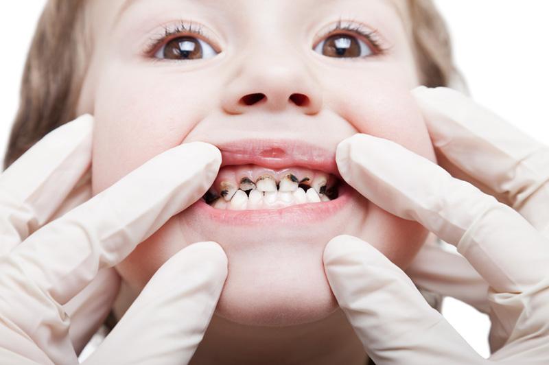 عوامل موثر در پوسیدگی دندان بچهها