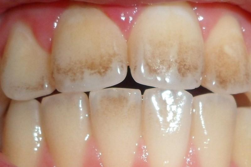 تأثیر نقش بزاق دهان در جرم سازی دندان