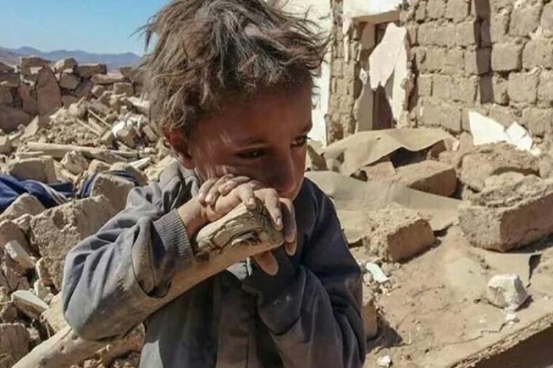یونیسف: هفت هزار و ۳۰۰ کودک  از زمان تجاوز عربستان به یمن کشته شدهاند