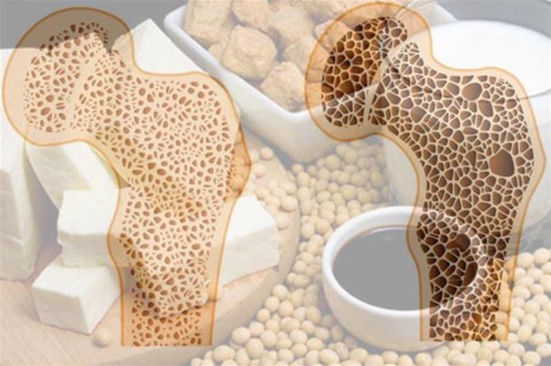 راهکار داشتن استخوانهایی سالم