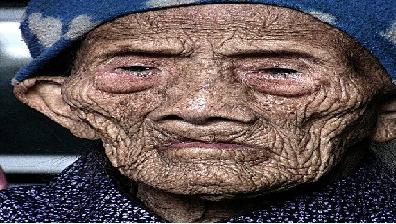 پیرترین انسان زنده در جهان+عکس