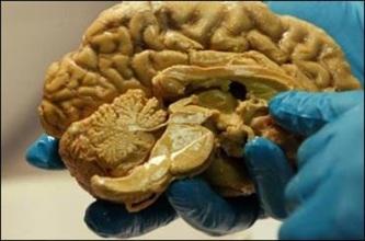 مغز معتادان دچار تغییرات ژنتیکی میشود