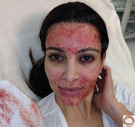 زیبایی چهره با روش ناخوشایند هالیوودی!+ عکس