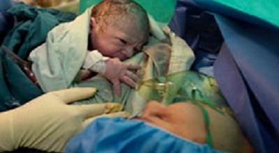 حاملگی بعد از عکس رنگی رحم