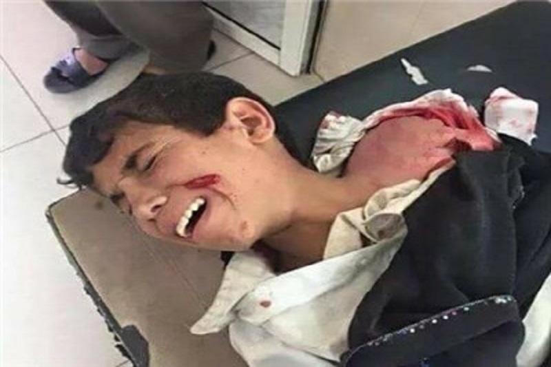 آتشبس موقت در یمن از یکشنبه